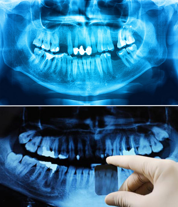 sets of teeth X-rays