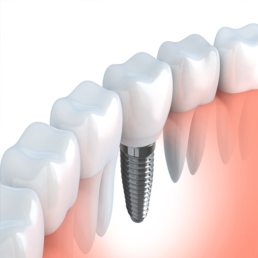 illustration-dental-implant-mental-base