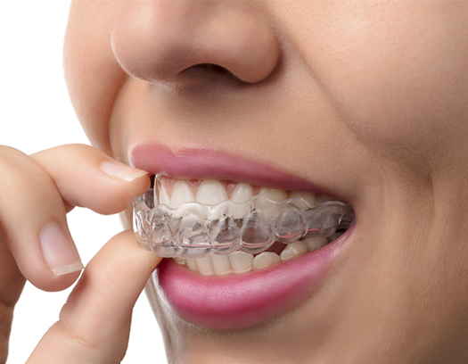 woman holding clear retainer in her mouth