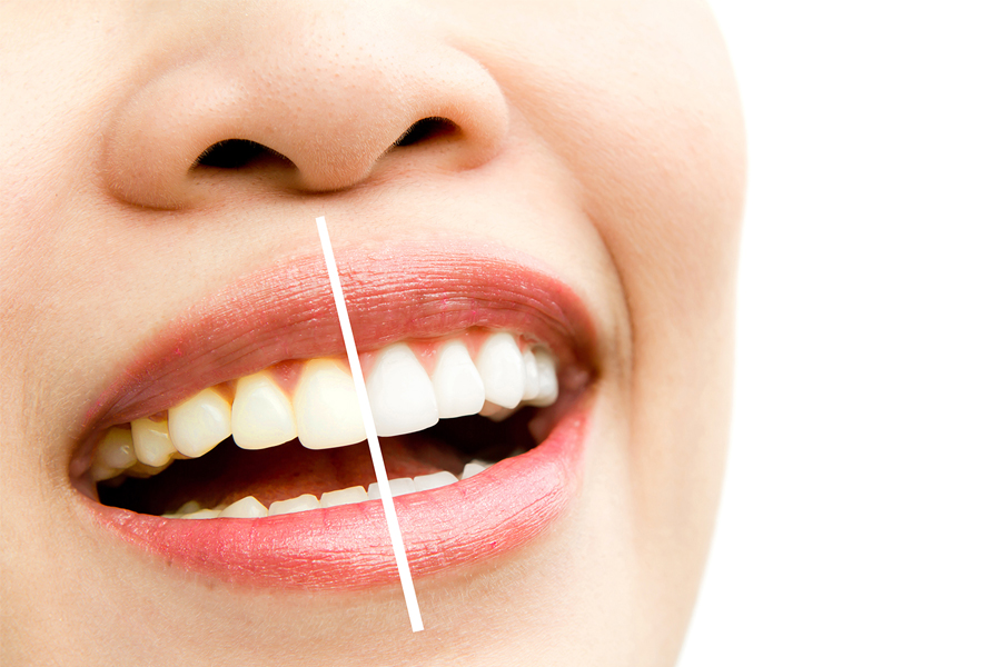 Woman's teeth showing before and after whitening treatment