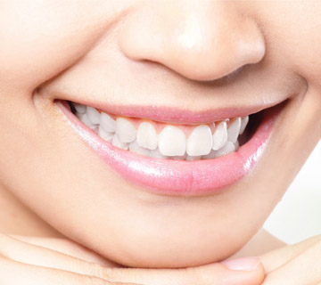 woman-with-whitened-teeth-smiling
