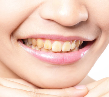 woman-with-yellow-teeth-smiling