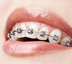 Service_Before Braces-Metal