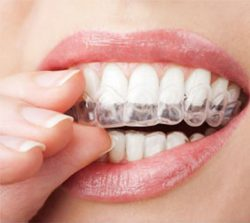 Services_After-Invisalign