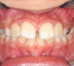 Services_Before Braces