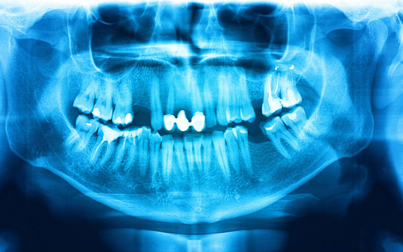 xray-film-of-teeth